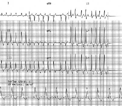 ECG of a 6 year old male Rottweiler